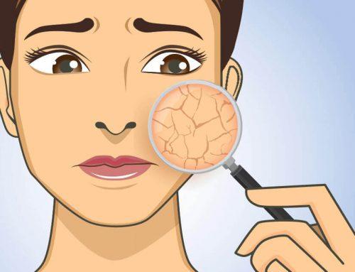Prirodna nega suve kože lica