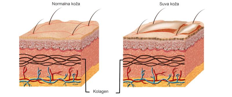 Poređenje kože između suve i normalne