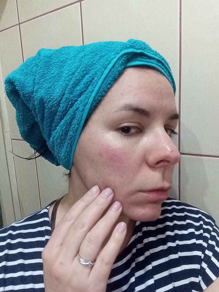Crvenilo - Problematična koža