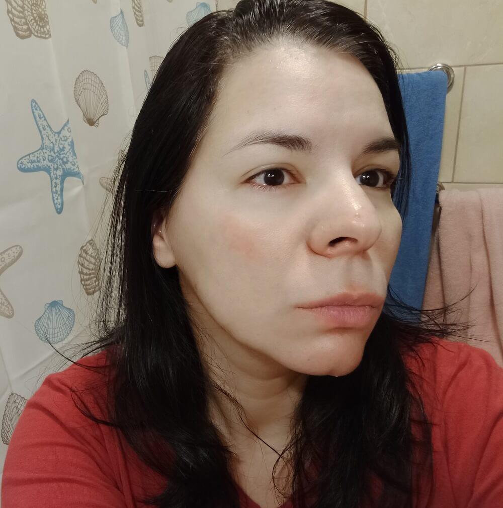 Nakon upotrebe prirodne kozmetike